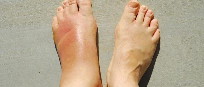 Флегмона на ноге при сахарном диабете