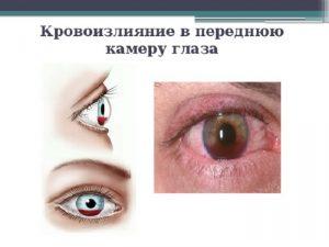 Глаза сахарный диабет