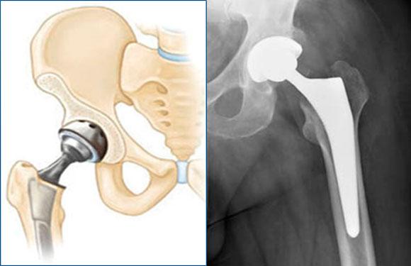 Протезирование при сахарном диабете суставов оскольчатый внутрисуставной перелом лучевой кости