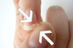 Ногти при остеопорозе фото