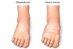 Гниет нога при сахарном диабете