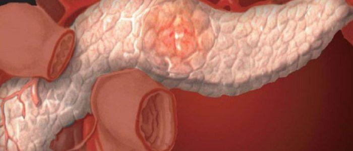 Можно избежать сахарный диабет при панкреатите
