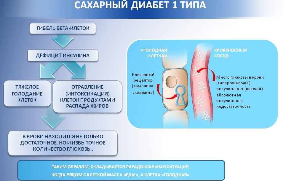 Последний тип стадии сахарного диабета