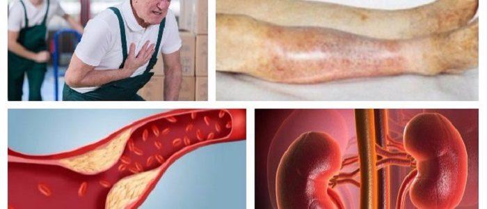 Лечится ли импотенция при диабете