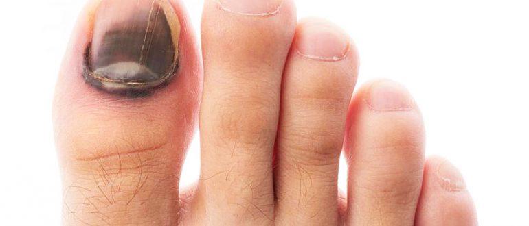 Ногти на ногах при сахарном диабете