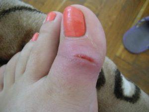При диабете ногти на ногах