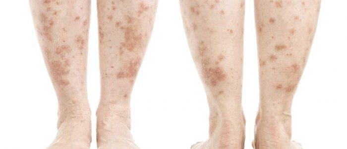 Лечение пятен на ногах при диабете