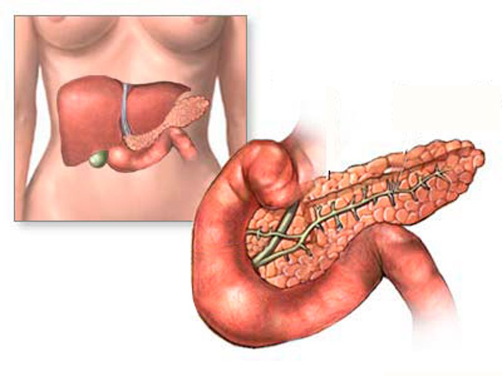 Болезнь сахарный диабет лечение диета