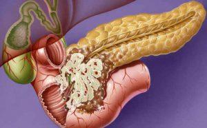 Поджелудочная железа и сахарный диабет: как лечить, диета