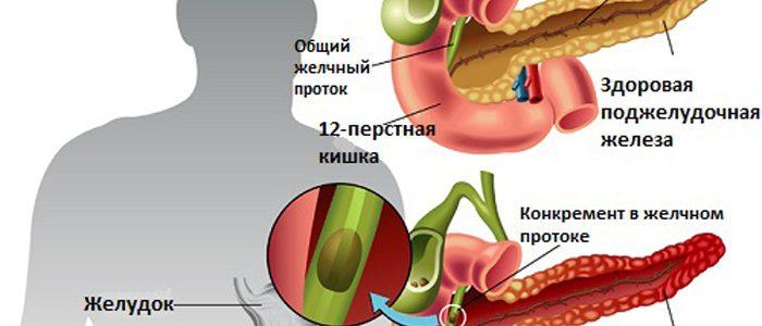 Диета при диабете и панкреатите